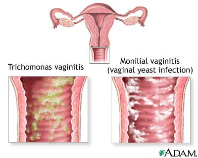 Vaginal yeast infection help